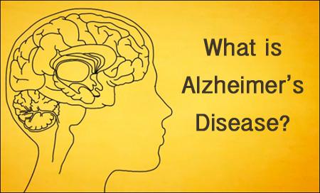 o que é a doença de Alzheimer
